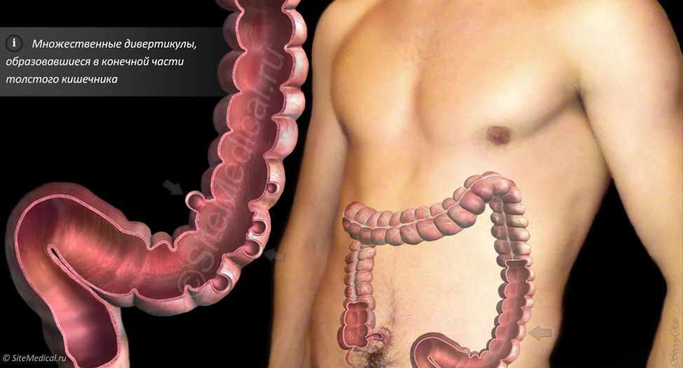 Лечение трещины прямой кишки в домашних условиях: диета и ...