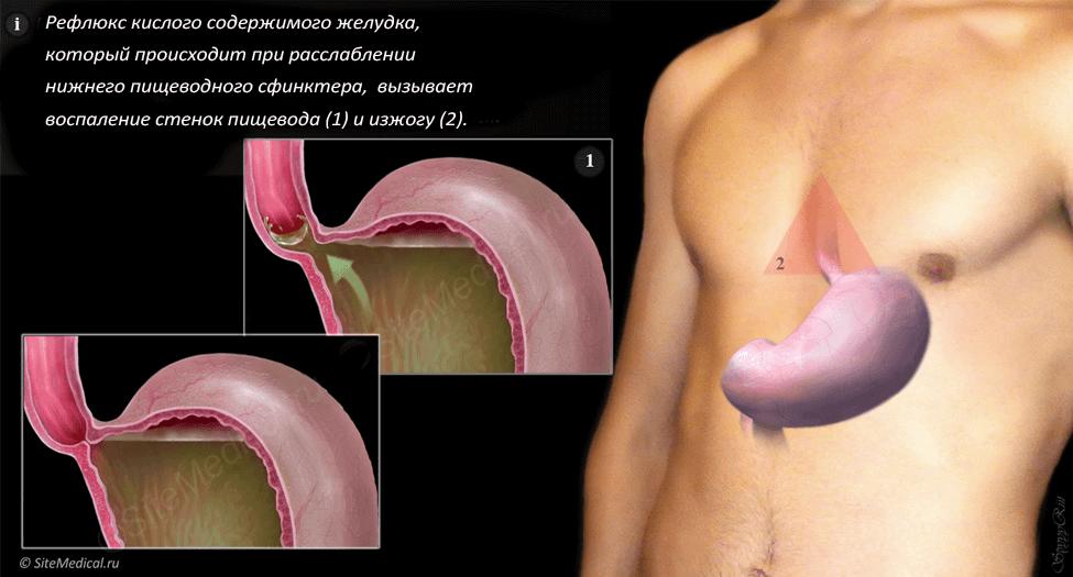 Научно обоснованное руководство для пациентов по вопросам, связанным с изжогой, болями и тяжестью в желудке Разумный Потребитель