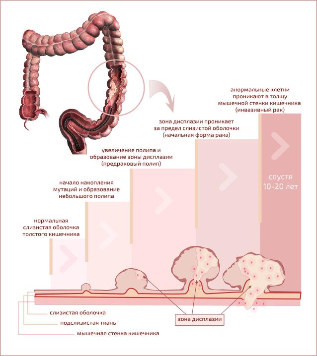 на схеме показана постепенная прогрессия аденомы (полипы толстого кишечника) в инвазивный рак толстого кишечника. Прогрессия занимает длительное время (10-20 лет) и определяется накоплением мутаций нарушающих процессы деления роста клеток в слизистой оболочке кишечника. на схеме показана постепенная прогрессия аденомы (полипы толстого кишечника) в инвазивный рак толстого кишечника. Прогрессия занимает длительное время (10-20 лет) и определяется накоплением мутаций нарушающих процессы деления роста клеток в слизистой оболочке кишечника.