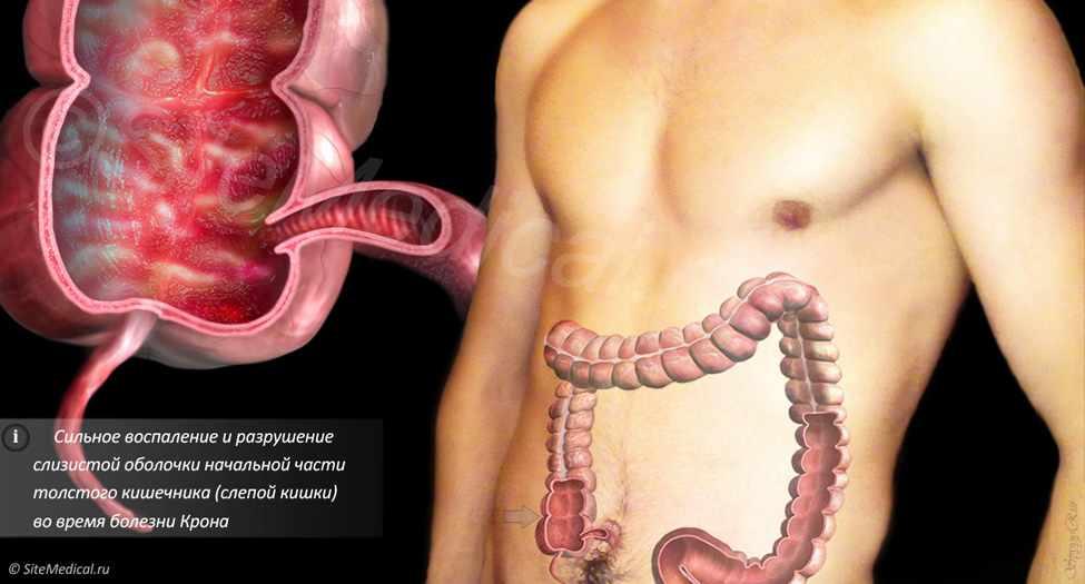 Болезнь Крона - симптомы и лечение