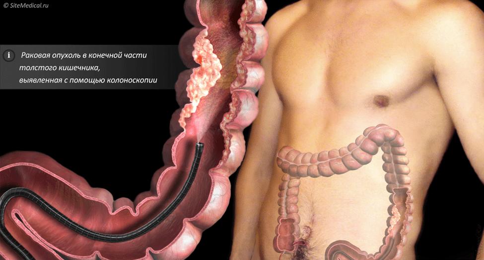 Рак толстого кишечника обнаруженный во время колоноскопии