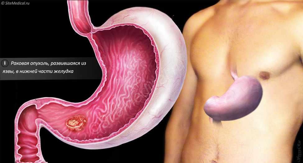 Раковая опухоль, развившаяся из язвы, в нижней части желудка