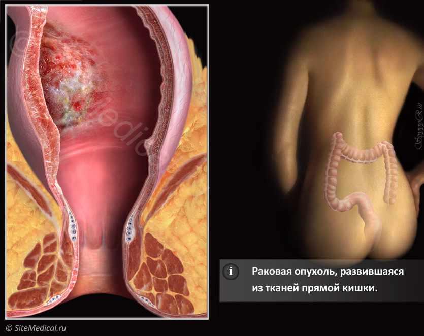 Болезни кишечника при анальном сексе