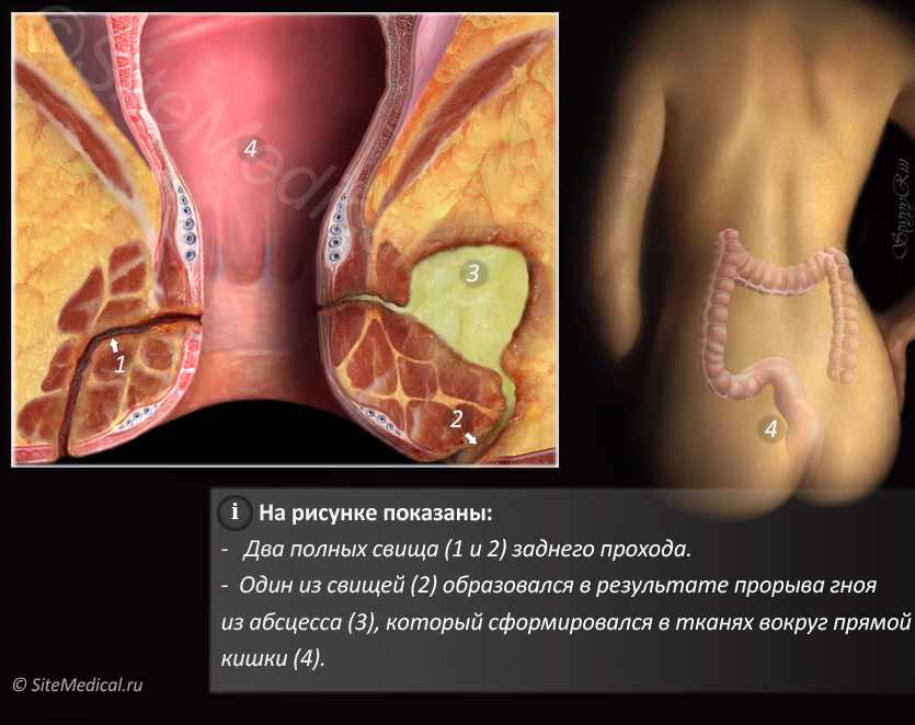 Два полных свища заднего прохода. Один из свищей образовался в результате прорыва гноя из абсцесса, расположенного в тканях вокруг прямой кишки.